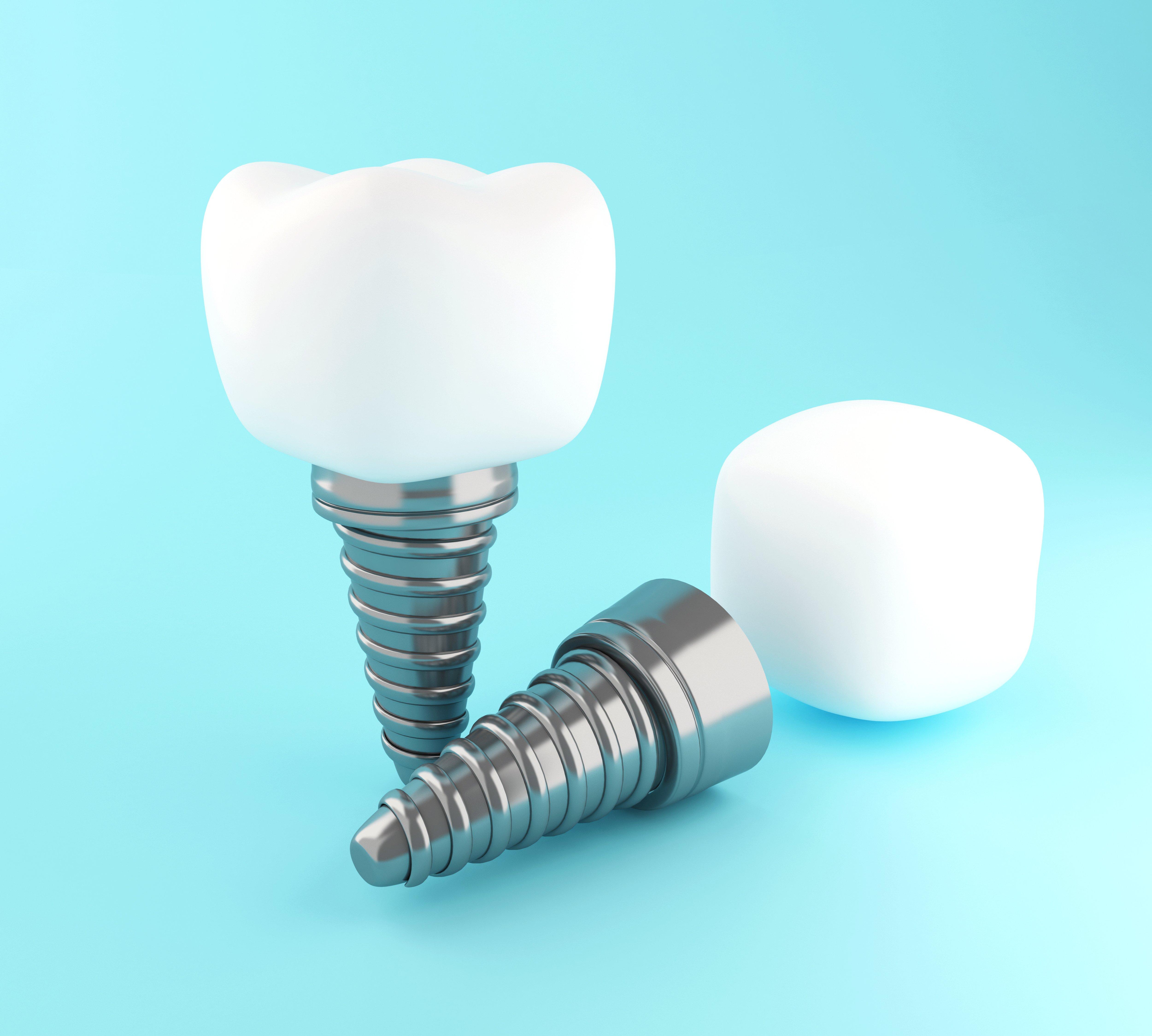 3D dental tooth implant