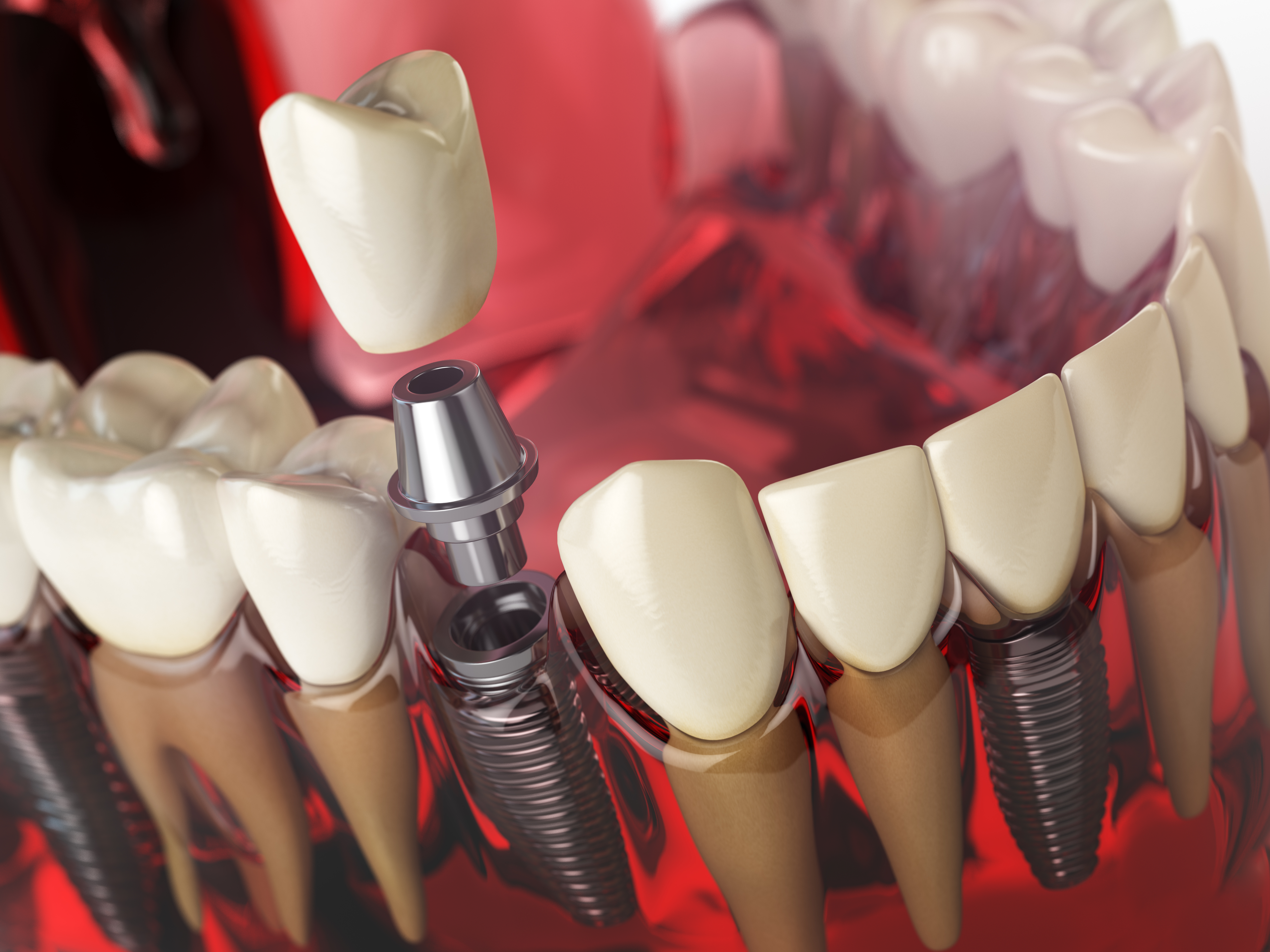 Tooth implant in the model of human teeth gums and denture