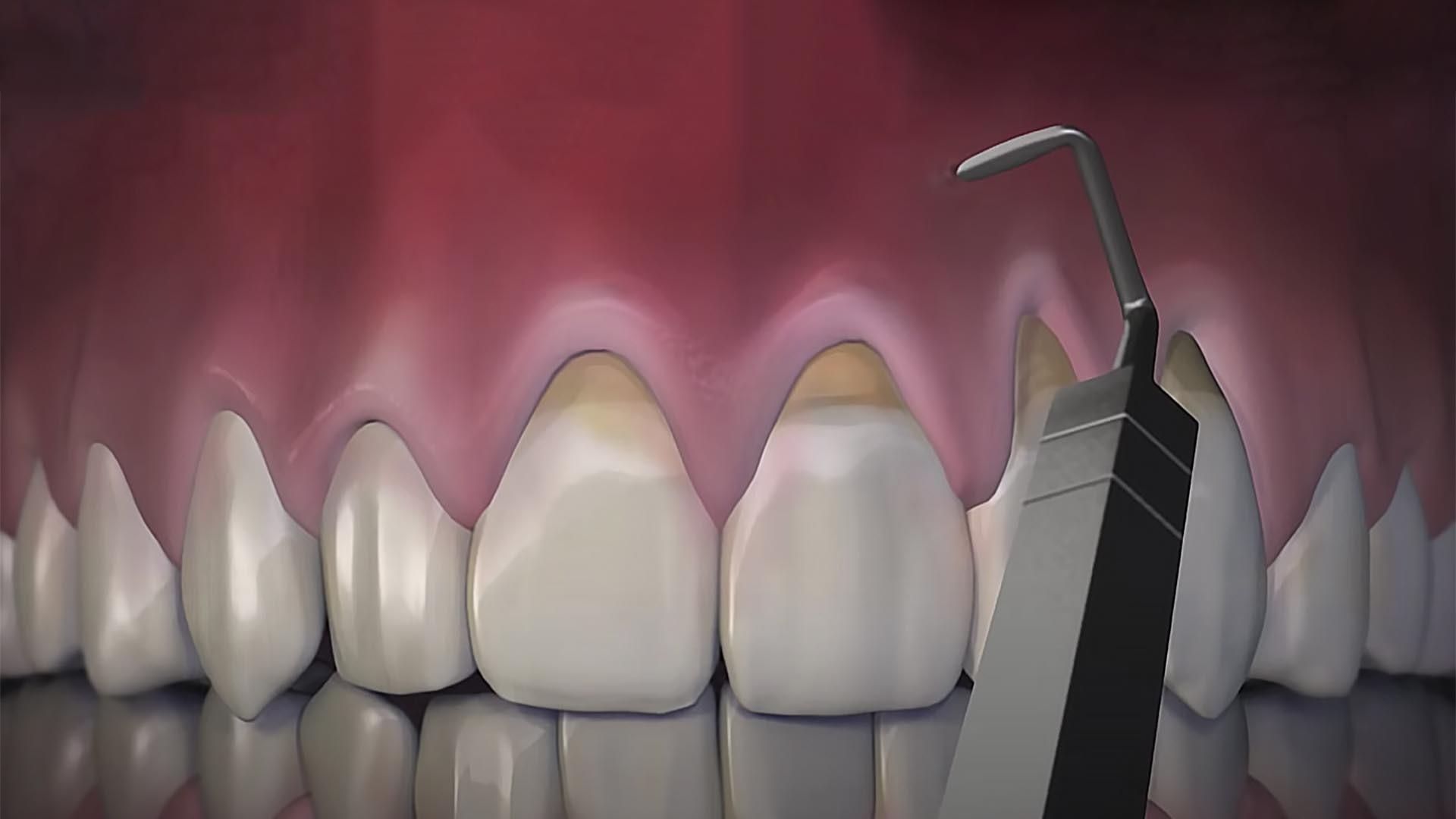 Chao Pinhole Gum Recession Treatmentx2