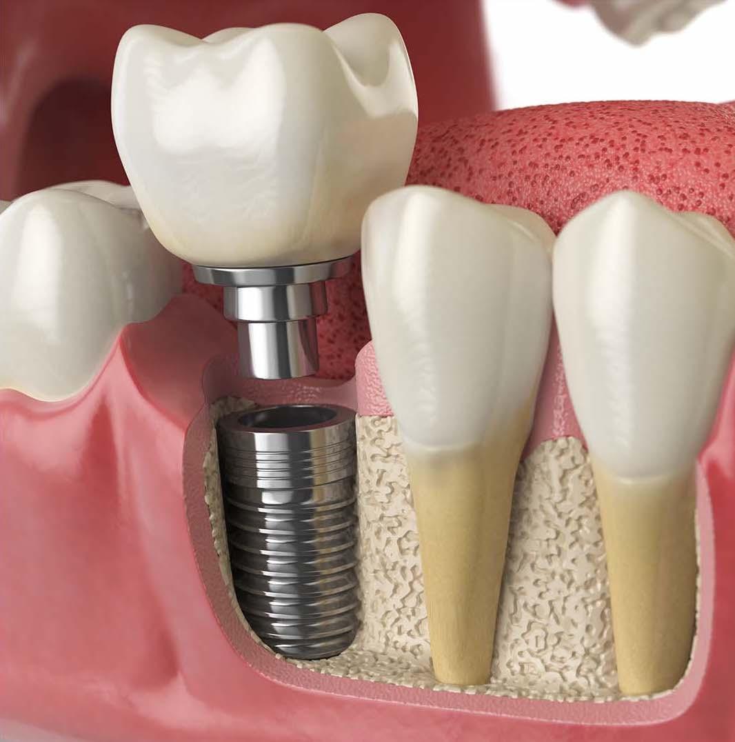 Dental Implants-2