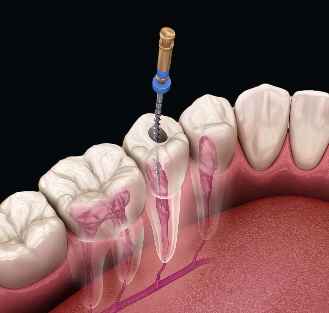 Root canal Treatment -1
